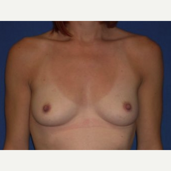 35-44 year old woman treated with Breast Augmentation before 3219939