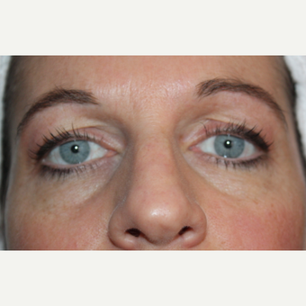 35-44 year old woman treated with Liquid Facelift