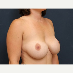 35-44 year old woman treated with Breast Implant Revision before 3344014