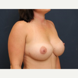 35-44 year old woman treated with Breast Implant Revision after 3344014