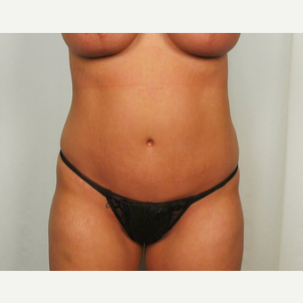 25-34 year old woman treated with Tummy Tuck after 3026087