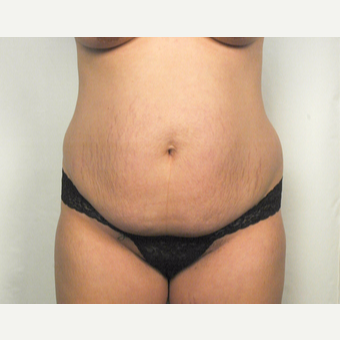 25-34 year old woman treated with Tummy Tuck before 3026087