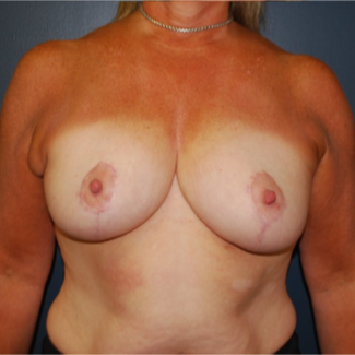 45-54 year old woman treated with Breast Reduction after 3613633
