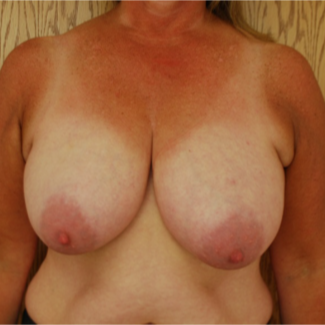 45-54 year old woman treated with Breast Reduction before 3613633