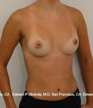 26 year old woman treated with Breast Augmentation 1756171