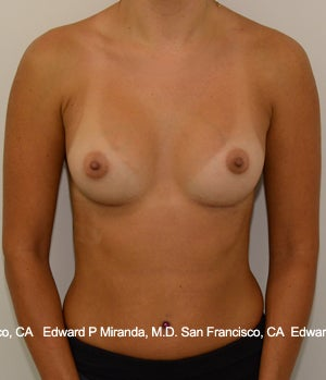 26 year old woman treated with Breast Augmentation after 1756171