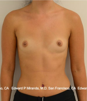 26 year old woman treated with Breast Augmentation before 1756171
