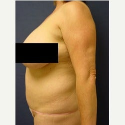 45-54 year old woman treated with Mini Tummy Tuck before 2058569