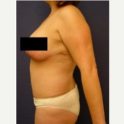 45-54 year old woman treated with Mini Tummy Tuck after 2058569