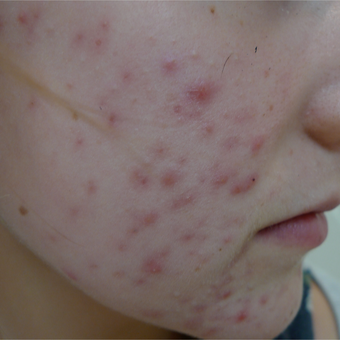 18-24 year old man treated with Acne Treatment before 3710552