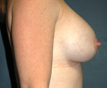 Breast Implants after 3545121