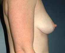 Breast Implants before 3545121