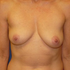 Breast Implant Removal after 2267593