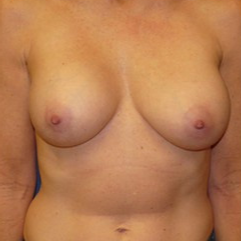 Breast Implant Removal before 2267593