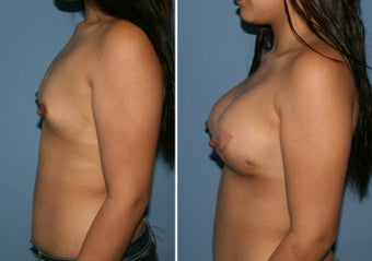 18-24 year old woman treated with Breast Augmentation after 3170052