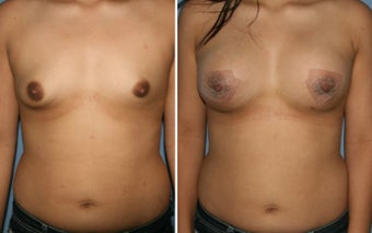 18-24 year old woman treated with Breast Augmentation before 3170052