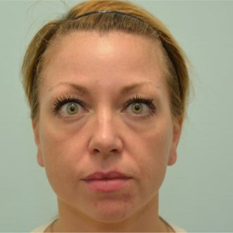 34 year old woman treated with Voluma, Restylane, and Dysport before 2589214