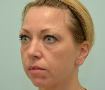 34 year old woman treated with Voluma, Restylane, and Dysport 2589214