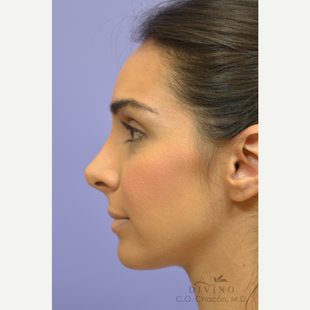 25-34 year old woman treated with Rhinoplasty after 3391948