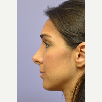 25-34 year old woman treated with Rhinoplasty before 3391948