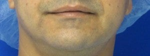 Chin Implant before 3164303