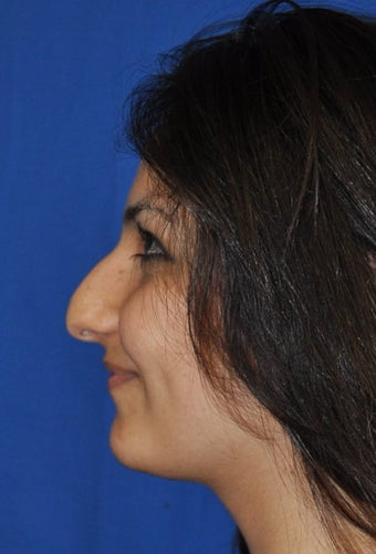 Rhinoplasty before 381414