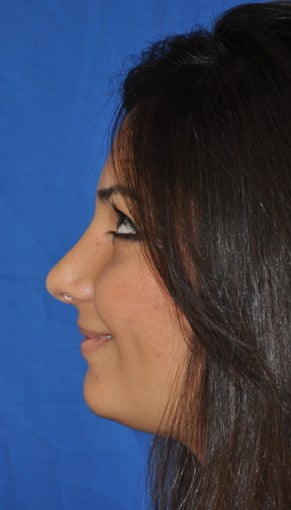 Rhinoplasty after 381414