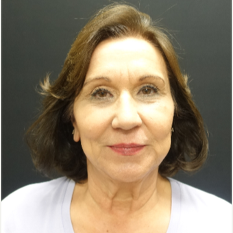 65-74 year old woman treated with Lower Face Lift before 3244876