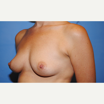 25-34 year old woman treated with Breast Augmentation before 3763103