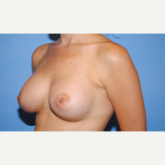 25-34 year old woman treated with Breast Augmentation after 3763103