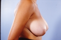 Breast Reduction before 3446218