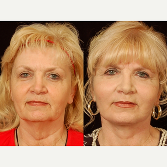 65-74 year old woman treated with Facelift before 3658850