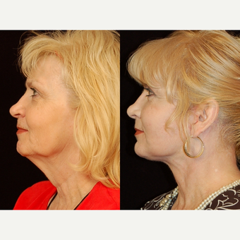 65-74 year old woman treated with Facelift after 3658850