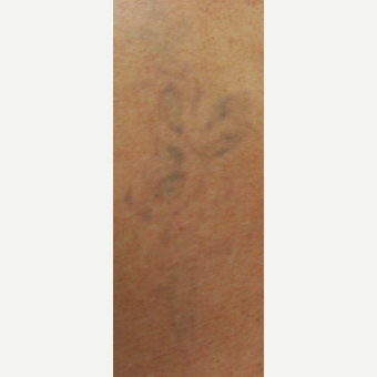 45-54 year old man Treated with PicoSure Laser for Tattoo Removal after 3149647