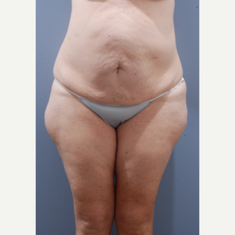 45-54 year old woman treated with Body Lift before 3610451