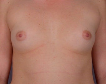 Breast Augmentation before 281413