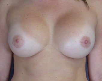 Breast Augmentation after 281413