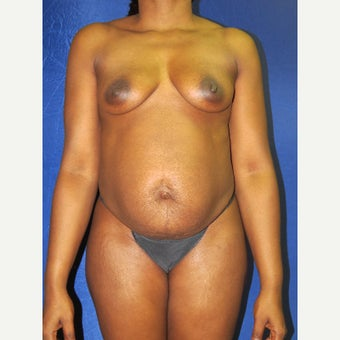45-54 year old woman treated with Mommy Makeover before 3136064