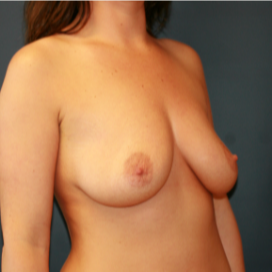 26 year old woman treated with Breast Implants before 2989648