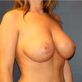 26 year old woman treated with Breast Implants after 2989648