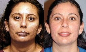Chemical Peel before 575412