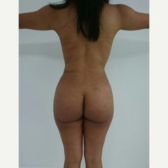 18-24 year old woman treated with Tummy Tuck 1906273