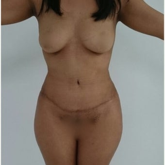 18-24 year old woman treated with Tummy Tuck after 1906273
