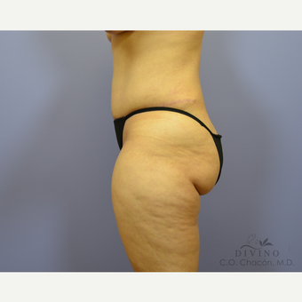 35-44 year old woman treated with Tummy Tuck after 3422000