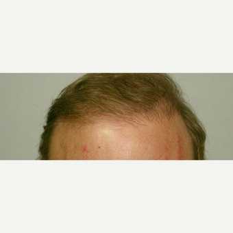 Hair Transplant after 3241403