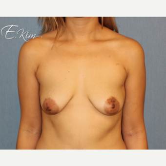 25-34 year old woman treated with Breast Lift before 3663454