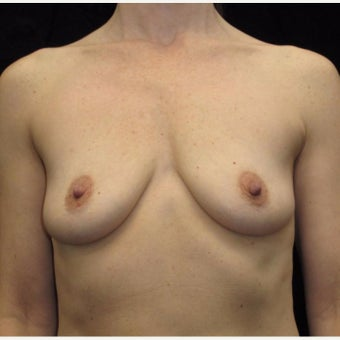 43 year old woman treated with Breast Augmentation before 2285060