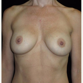 43 year old woman treated with Breast Augmentation after 2285060