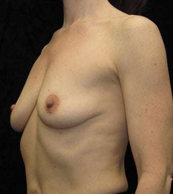 43 year old woman treated with Breast Augmentation 2285060