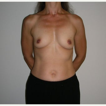 Breast Augmentation before 1690492
